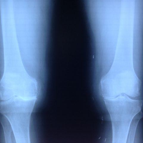 Οστεοαρθρίτιδα γόνατος – ολική αρθροπλαστική