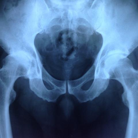Οστεοαρθρίτιδα ισχίου – ολική αρθροπλαστική