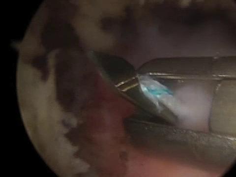 Αρθροσκοπηση ώμου: ρήξη τένοντα υπερακανθίου – συρραφή
